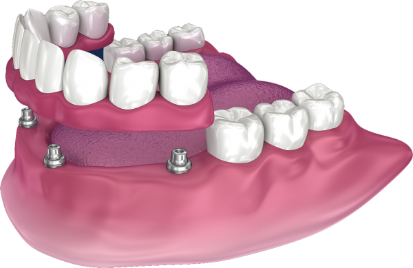 full-arch tooth replacement